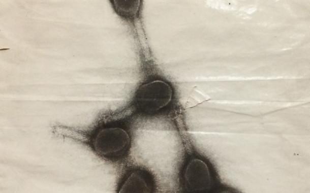 Електронномікроскопічне зображення бактеріофагу Т4