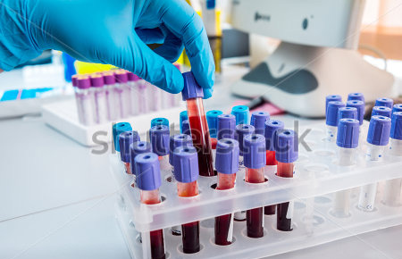 stock-photo-medical-equipment-blood-test-327930536